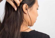 Best Hair Oils to Cure Dandruff