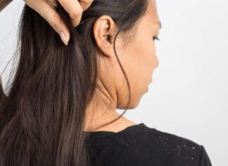 Best Hair Oils to Cure Dandruff